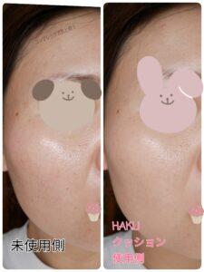 HAKUボタニック サイエンス 薬用 美容液クッションコンパクト使用前後写真