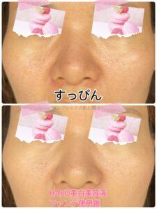 HAKU美白美容液リキッド使用前後比較